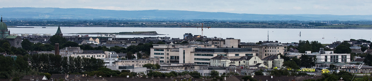 University College Hospital, Galway (UCHG)