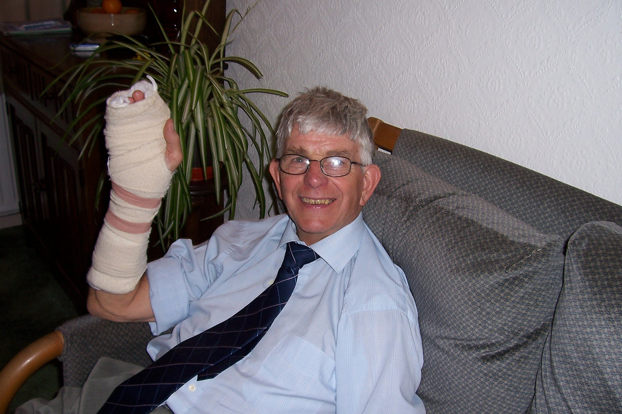 Dad, returned safely from hospital after having his hand operated on. Smiling even though he wont be playing golf for a while.