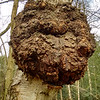 bur on Silver Birch, Betula pendula (2)