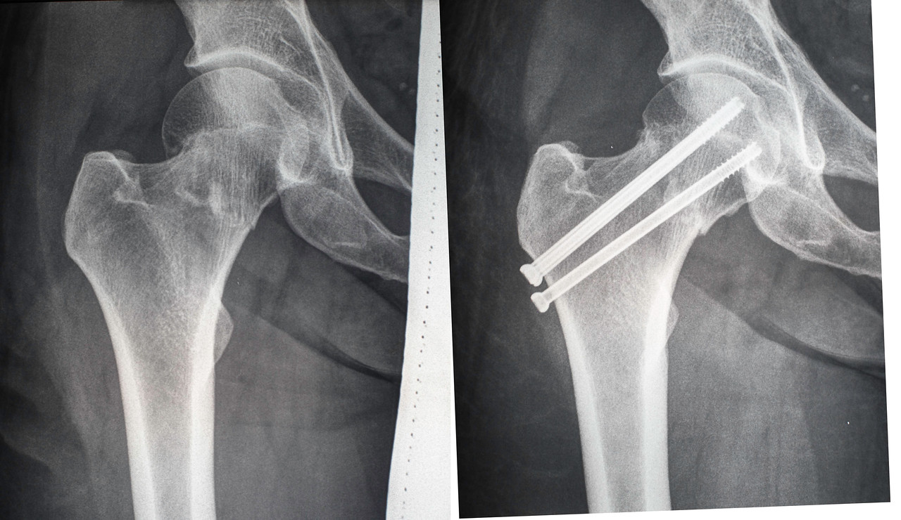 Before and after comparison - Femoral neck fracture