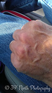 Jerry's Knuckles by Betty S.
