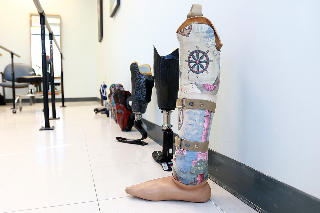 . A row of the Hanger Clinic prosthetics on Thursday at their Leominster office. SENTINEL & ENTERPRISE/JOHN LOVE
