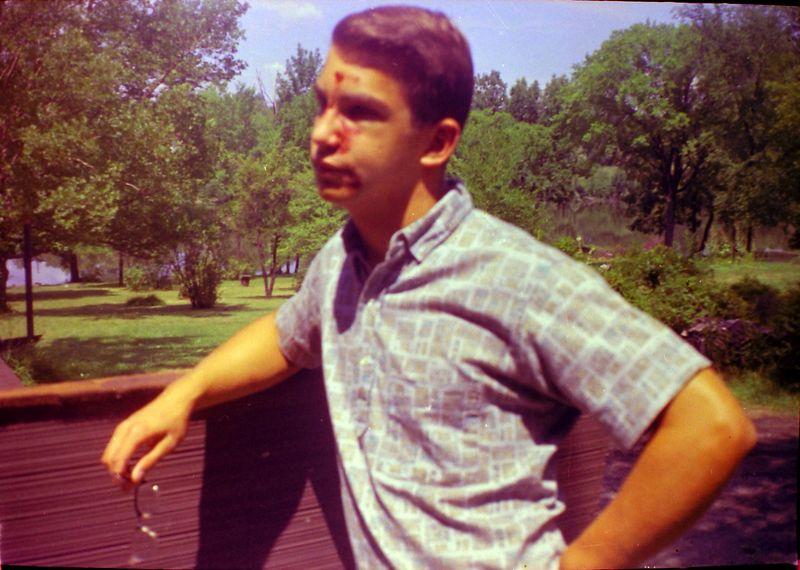 #9 Malcolm Stebbins & Broken Nose 1710 MRD summer'63