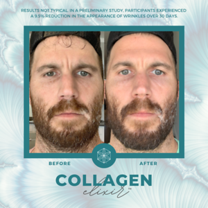 Copy of Copy of FINAL collagen before and after template