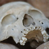 "A human skull found in the display case from the Killing Fields at Choeung Ek - Cambodia.  A travel photo form Choeung Ek, Cambodia. <a href=""http://nomadicsamuel.com"">http://nomadicsamuel.com</a>"
