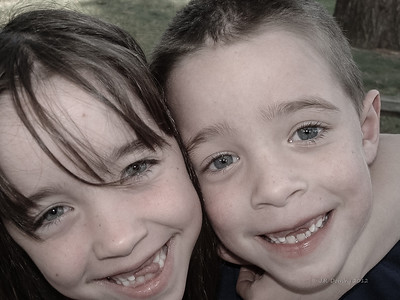 Twins with missing teeth - 2002