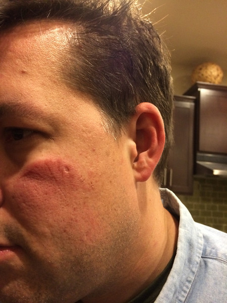 Face on day of accident, February 28, 2014. Note small laceration created by eyeglasses under eye and airbag burn. Note bump on head as well.