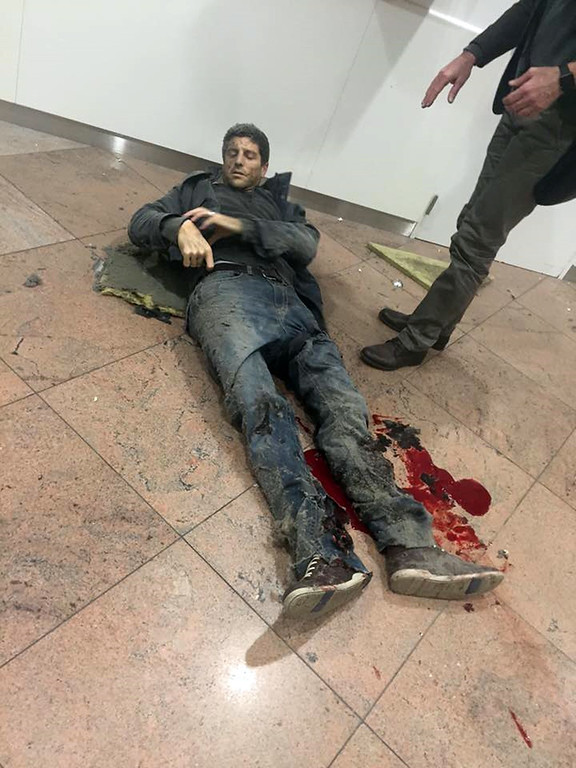 . In this photo provided by Georgian Public Broadcaster and photographed by Ketevan Kardava a man is wounded in Brussels Airport in Brussels, Belgium, after explosions were heard Tuesday, March 22, 2016. A developing situation left at least one person and possibly more dead in explosions that ripped through the departure hall at Brussels airport Tuesday, police said. All flights were canceled, arriving planes were being diverted and Belgium\'s terror alert level was raised to maximum, officials said. (Ketevan Kardava/ Georgian Public Broadcaster via AP)