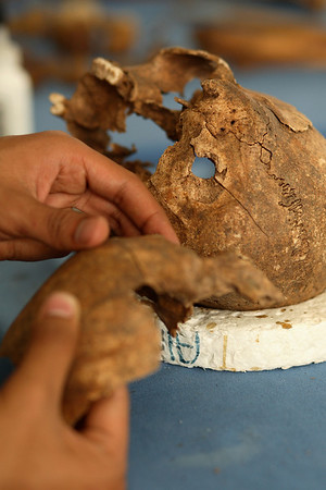 A bullet hole found in the back of a skull is clearly visible from remains exhumed from a mass grave. Evidence that the victim was bound was also recovered. Guatemala/Panetta.
