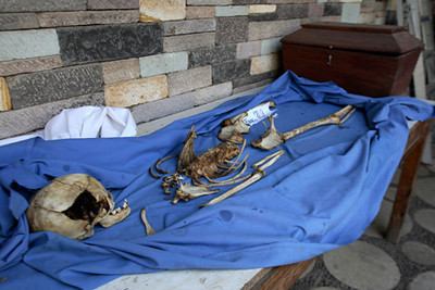 Exhumed remains.  Guatemala (Panetta)