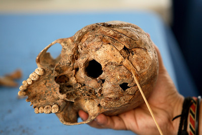 Guatemala/Panetta. Exhumed remains from a mass grave. Blunt markings on the back of the skull are presumed to be the result of a brutal machete attack.