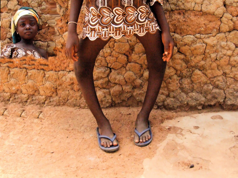 """This is a 11 year old Kambari tribe girl. She has a disease called Rickets. This is mainly caused by Lack of Vitamin [D]. because these children live in extreme poor children live in extreme poverty in rural and remote villages, their immune system is very weak. they cannot obsorb much vitamins, as they have not enough good quality food.. It is among these<br /> people I and the Philadelphia Mission charity work.<br /> <br /> *+ALL MONEY RAISED FROM SALE OF MY ART, AND DONATIONS MADE VIA OUR CHARITY WEBSITE, GOES TO HELP THESE PRECIOUS CHILDREN. WE TAKE NOTHING OUT OF WHAT YOU GIVE TOWARDS CHARITY OVERHEADS. WE ARE NOT SALARIED AND COVER OUR OWN TRAVEL EXPENSES. SO ALL THAT YOU GIVE GOES TO THESE CHILDREN+*.<br /> <br /> To make a donation, or find out more, Please visit our Charity Mission website: *""""http://www.philadelphia33.org/*"""" <a href=""""http://www.philadelphia33.org/"""">http://www.philadelphia33.org/</a><br /> <br /> See more of my work at :<br /> *""""http://www.redbubble.com/people/joshuatree1*"""" <a href=""""http://www.redbubble.com/people/joshuatree1"""">http://www.redbubble.com/people/joshuatree1</a>"""