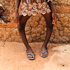 "This is a 11 year old Kambari tribe girl. She has a disease called Rickets. This is mainly caused by Lack of Vitamin [D]. because these children live in extreme poor children live in extreme poverty in rural and remote villages, their immune system is very weak. they cannot obsorb much vitamins, as they have not enough good quality food.. It is among these<br /> people I and the Philadelphia Mission charity work.<br /> <br /> *+ALL MONEY RAISED FROM SALE OF MY ART, AND DONATIONS MADE VIA OUR CHARITY WEBSITE, GOES TO HELP THESE PRECIOUS CHILDREN. WE TAKE NOTHING OUT OF WHAT YOU GIVE TOWARDS CHARITY OVERHEADS. WE ARE NOT SALARIED AND COVER OUR OWN TRAVEL EXPENSES. SO ALL THAT YOU GIVE GOES TO THESE CHILDREN+*.<br /> <br /> To make a donation, or find out more, Please visit our Charity Mission website: *""http://www.philadelphia33.org/*"" <a href=""http://www.philadelphia33.org/"">http://www.philadelphia33.org/</a><br /> <br /> See more of my work at :<br /> *""http://www.redbubble.com/people/joshuatree1*"" <a href=""http://www.redbubble.com/people/joshuatree1"">http://www.redbubble.com/people/joshuatree1</a>"