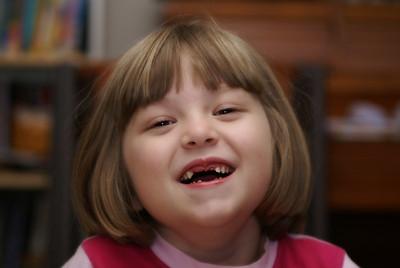 Lauren  The Toothless Wonder