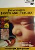 #138<br /> <br /> CMI Frankenstein Foods & Fetuses (duplicate of #121) - Dr. Don Batten