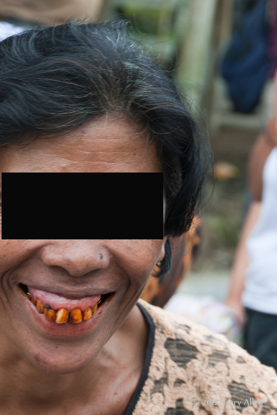 What chewing betel nut can do to your teeth, North Sumatra