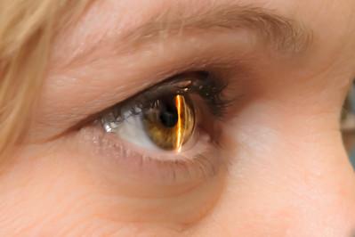 Adamstown Eye