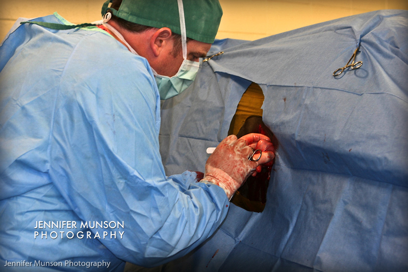 tumor removal laparoscopic surgery