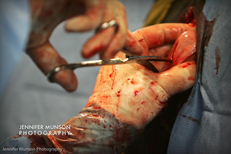 tumor on mare's uterus - L surgery