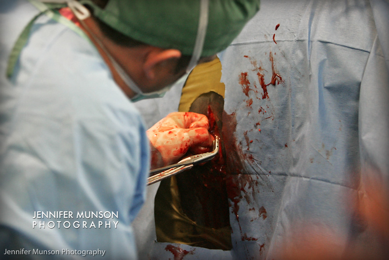 pulling out tumor from mare L surgery