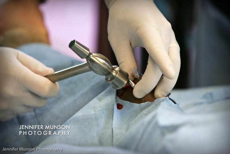 Ortho surgery hammer