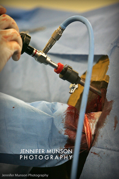 Laparoscopic surgery on mare - tumor removal