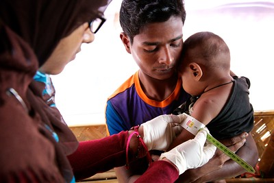 0564-0567  A health assistant examines a child suffering from Severe Acute Malnutrition at an OTP center at Unchiprang makeshift settlement in Teknaf, Cox's Bazar, Bangladesh.     Photo: UNICEF/b.a.sujaN/ Map