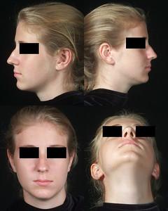 female composite