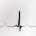 Black And White Graphic Of Ekg Monitor