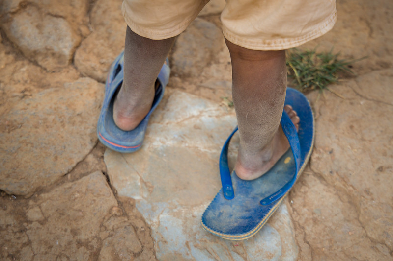 a child wearing mismatched flip-flop sandals in Kigali Rwanda