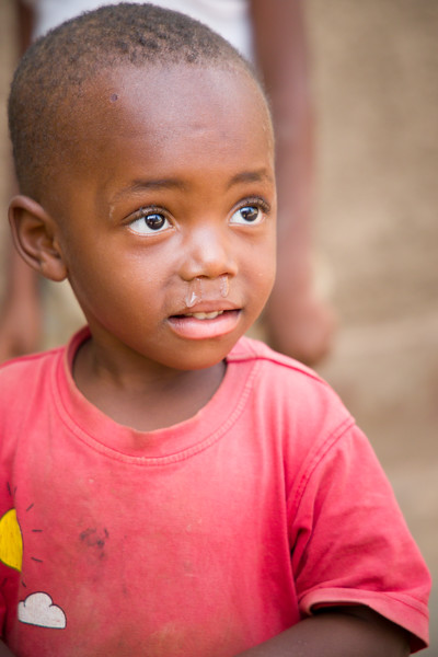 A young child with a runny nose in Kigali Rwanda.
