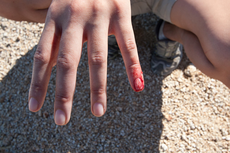 Mary Anne's injury from rockfall in the talus field.