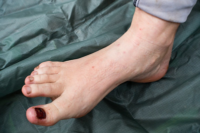 Who needs toenails?