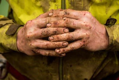 A climber shows his scratched and muddy hands.