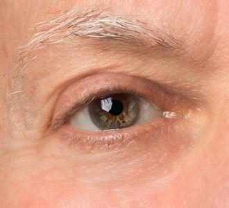 Retouched Eye