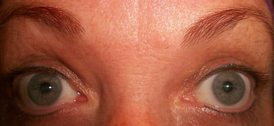 "Vicki's eyes with just the semi-permanent eye-linter about 1 week later.  Can you see the difference between that & the washed/faded out nothing in the ""Before"" pictures??!!!!  JUST subtle enough - even withOUT mascara!!! (which is my normal daily look lately) ."