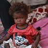 Salam 9 months old, her twin sister died because malnutrition