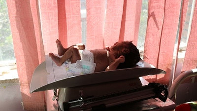 Children suffering from malnutrition, Sanaa, February 2017