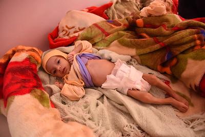 Malnutrition Sabaeen Hospital, Sana'a, March 2017