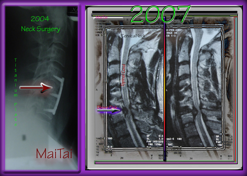My neck injury ..The first one replaced 2 disk that had blown out...a Titanium plate and 2 bone grafts were installed in 2004...Military related in Iraq.<br /> <br /> In 2007 the other disk blew out as seen in this MRI. The disk was removed and fused together with bone just like the previous operation...and screwed together with a small titanium plate.