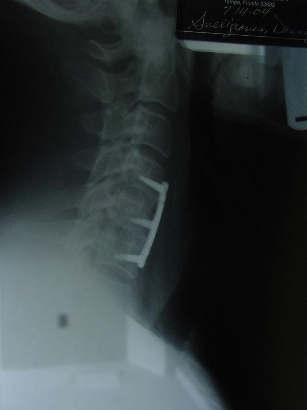 My new Neck....