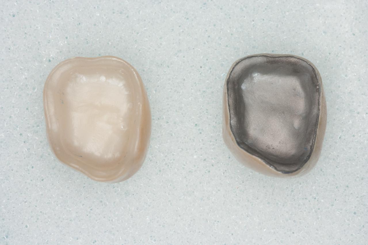 Which one's which?  Bruxzir (Zirconia) on left, PFM on Right