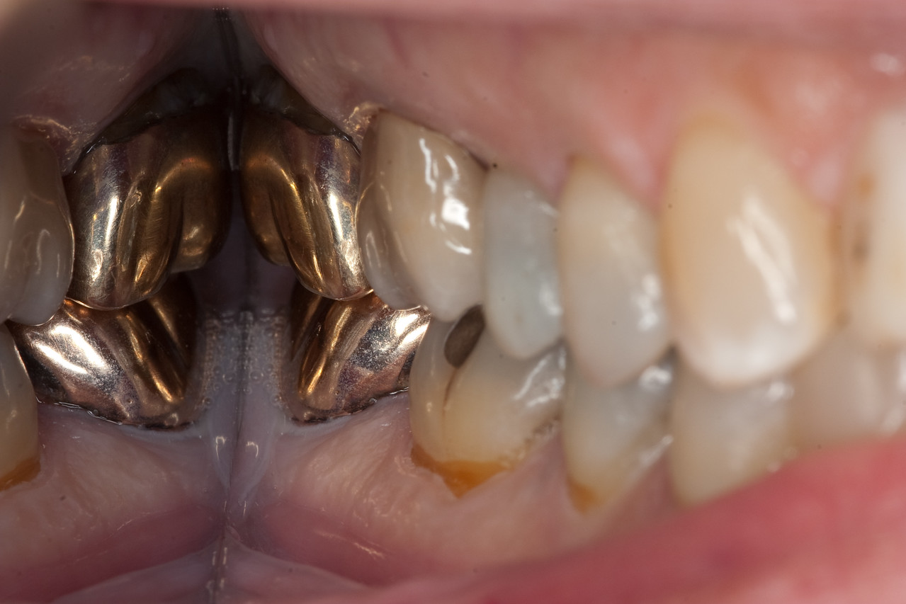Bruxzir crown on #3, full contour zirconia