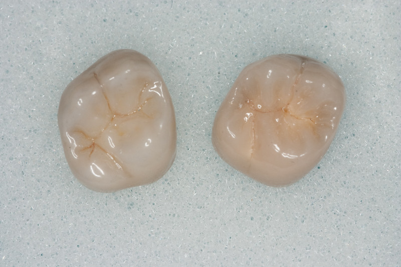 Which one's which?  Bruxzir (Zirconia) on left, PFM on Right