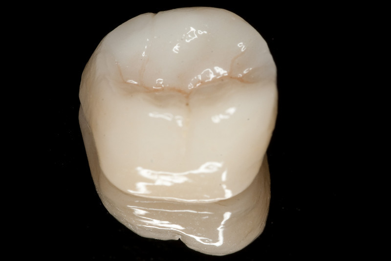Bruxzir, a full contour zirconia crown