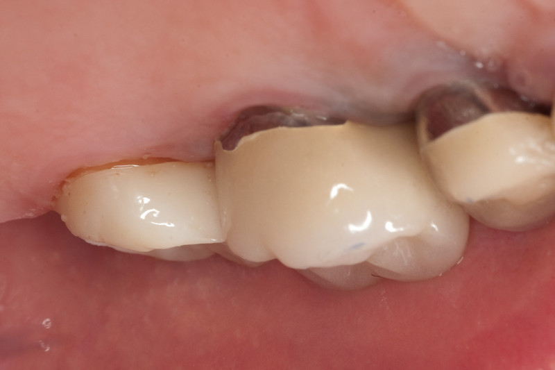 Seated zirconia crown, lingual view