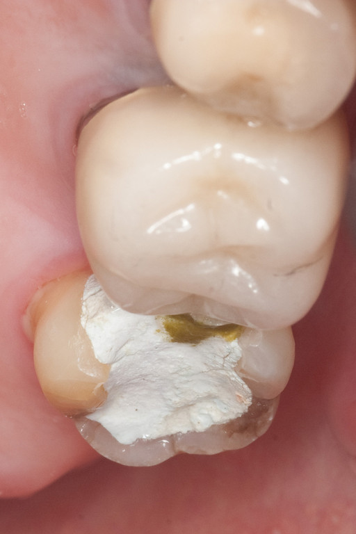 Here's the tooth after root canal treatment.