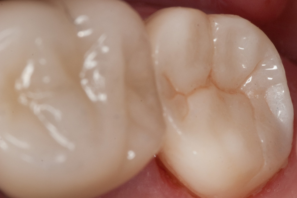 Seated zirconia crown, occlusal view