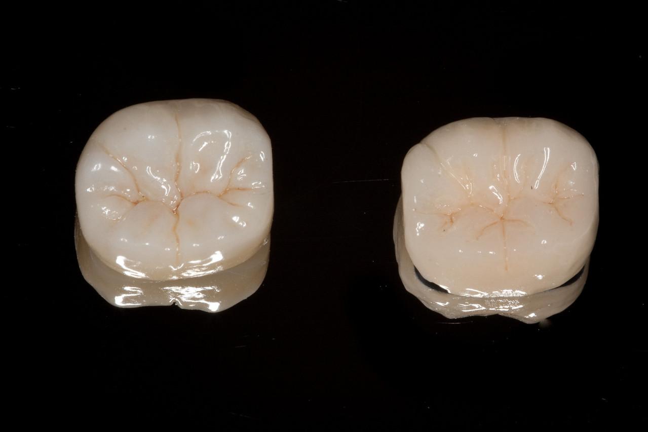 Standard PFM crown (right) vs metal free Bruxzir crown (left)
