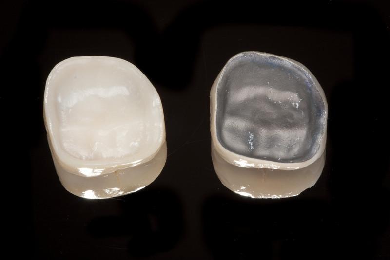 Underside of PFM crown (right) vs metal free Bruxzir crown (left)